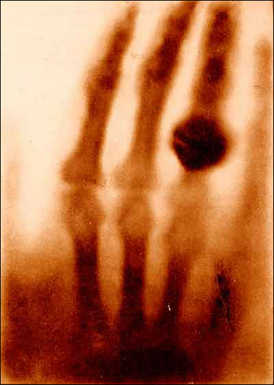 Rontgen hand X-ray